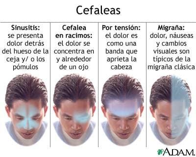 tipos de cefaleas
