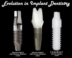 Evolucion implantes y estetica