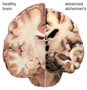 cerebro con alzheimer
